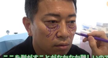 目のクマを整形した宮迫博之①
