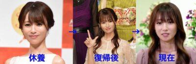 深田恭子の顔画像比較